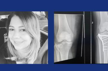 Paula sofreu um grave acidente, felizmente ela tinha seguros!